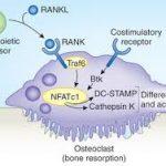 Denosumab(抗RANKL完全ヒトモノクローナル抗体)が欧米で骨粗鬆症の治療薬として承認。