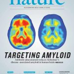 抗体のaducanumabはアルツハイマー病に関連するヒト脳でのアミロイド沈着を軽減する
