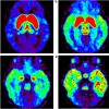 衝動性の強い人は、中脳のD2/D3ドーパミン受容体が少なく、線条体でのドーパミン放出が多い?