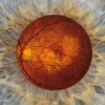 DICER1欠損は加齢性黄斑変性症におけるAlu反復配列RNA毒性を誘導する