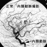 モヤモヤ病に関与する遺伝子を発見