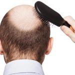 Wntシグナルを増強するWAY-316606に育毛効果