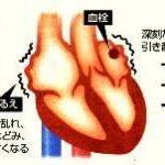 10%程度の減量で、9割近い肥満者の心房細動が改善
