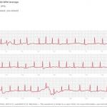 リリースされたばかりのApple Watchの心電図機能でさっそく命を救われる事例が報告される