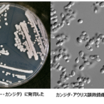 カンジダ・オーリス(Candida auris)というカビ(真菌)による感染症が「世界的に流行」する恐れアリ