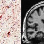 新しい認知症、大脳辺縁系優位型老年期TDP-43脳症(Limbic-predominant age-related TDP-43 encephalopathy、LATE)