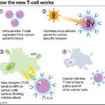 すべてのがんを治療できる可能性があるT細胞治療が開発された