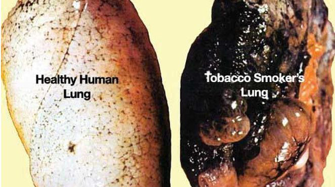 【閲覧注意】喫煙者の肺の画像と動画のコレクション
