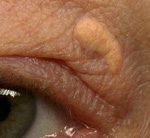 眼瞼黄色腫と角膜環の虚血性心疾患および死亡におけるリスク予測因子としての意義