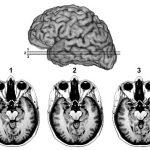 恐怖の誘発と経験におけるヒト扁桃体(Amygdala)の役割―両側扁桃体障害の1症例