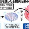 備蓄する他人のiPS細胞から作成した心筋細胞のシートによる心臓病治療について