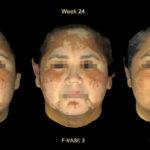 白斑治療、JAK阻害薬のクリーム剤が有望